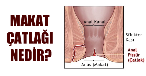 Anal Fissur