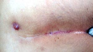 ameliyatsiz-kil-donmesi